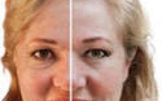 Лифтинг массаж — сотри с лица 10 лет