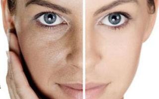 Как избавиться от лицевого целлюлита?