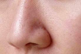 широкие поры на лице