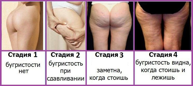 Чем можно лечить остроконечные кондиломы